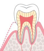 歯科再生医療