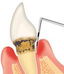 歯周病治療の初期治療