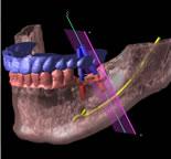 CT写真と顎の模型を組み合わせた分析画像1