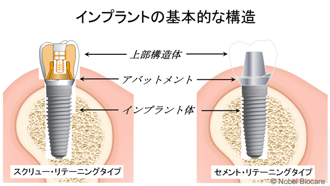 インプラントの基本的な構造