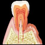 歯肉炎、歯周病とは