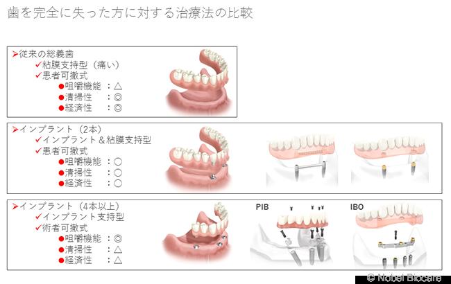歯を完全に失った方に対する治療法の比較